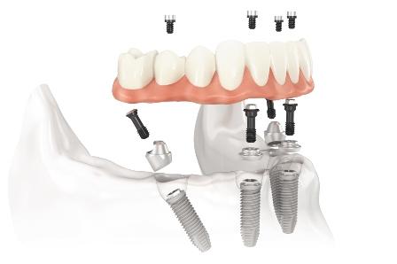 implantologia3-2