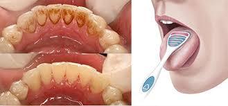 Il tuo dentista informa!!