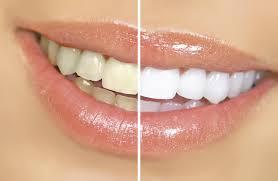 Come eliminare le macchie sui denti!!