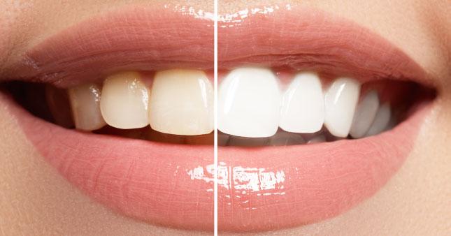 Sbiancamento dentale: prima e dopo