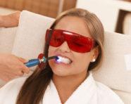 Sbiancamento dentale: ridere fa bene alla salute, perché rinunciare?